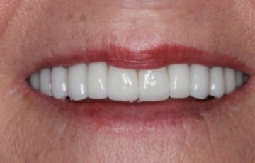 Upper and Lower Crowns and Veneers