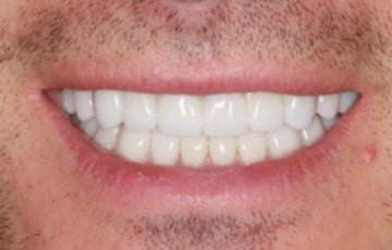 Upper and Lower Crowns and Veneers to Correct the Bite