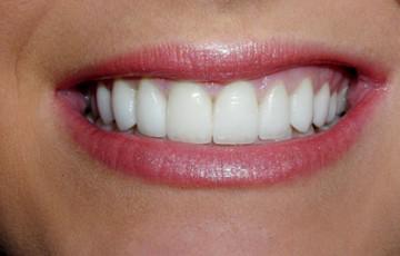 Porcelain Veneers Upper and Lower, Laser Gum Reshaping