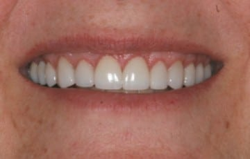 Porcelain Crowns and Laser Gum Recontouring