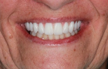 Upper Implant supported Teeth-in-a-Day