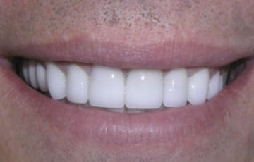 Upper and Lower Crowns and Veneers, Gum Recontouring