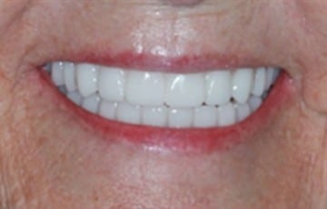 Upper and Lower Teeth In A Day Dentures