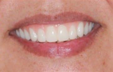 Upper Teeth In A Day Denture